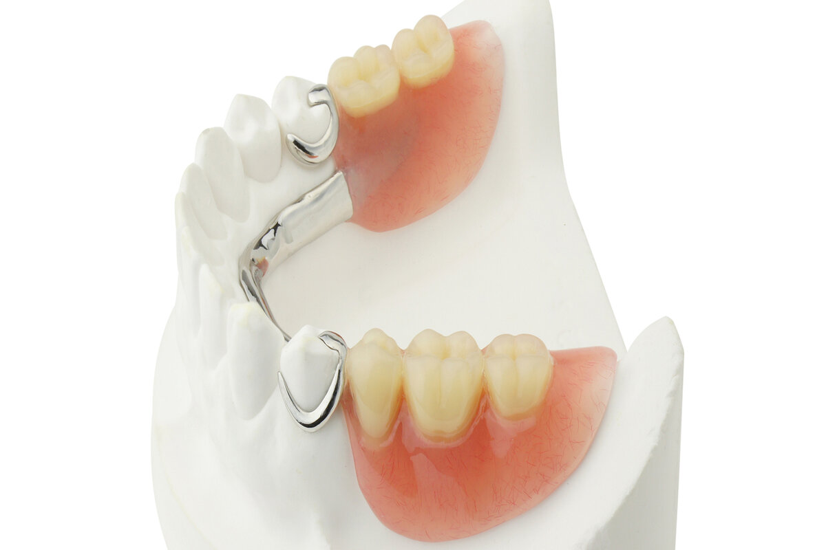 https://logandentureclinics.com.au/wp-content/uploads/2020/11/partial_dentures1.jpg